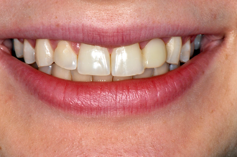 Closeup photo of female patient smiling showing teeth before smile makeover