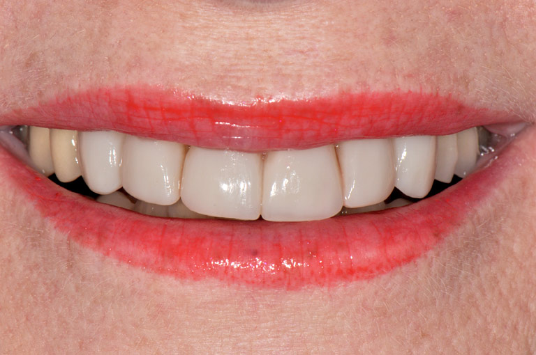 Closeup photo of Arlene smiling showing teeth after smile makeover