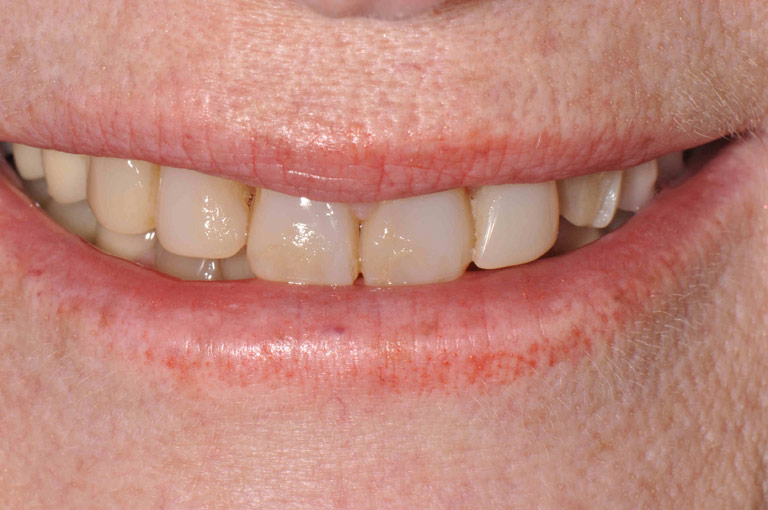 Closeup photo of Arlene smiling showing teeth before smile makeover