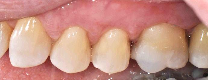 Closeup photo showing repaired broken molar