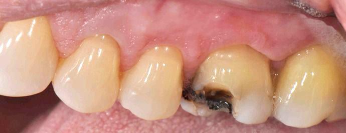 Closeup photo showing broken molar tooth before repair