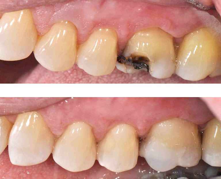 Closeup photos showing repaired broken molar before and after by Dr. Weiss