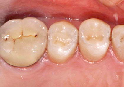 Closeup photo showing teeth with new composite fillings