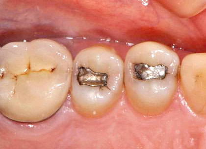 Closeup photo showing teeth with silver fillings