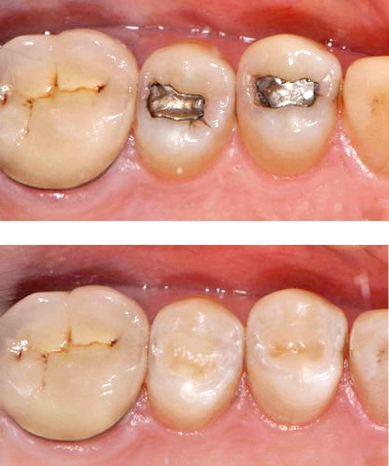 Closeup photoa showing teeth with new composite fillings replaced by Dr. Weiss
