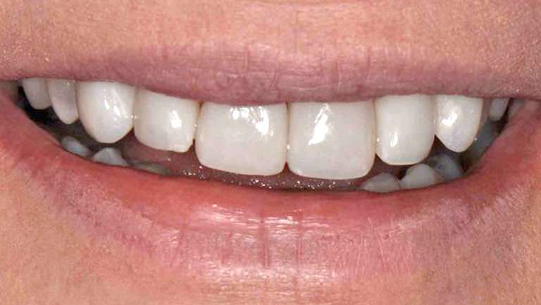 Closeup photo of man smiling after smile makeover with gap removed