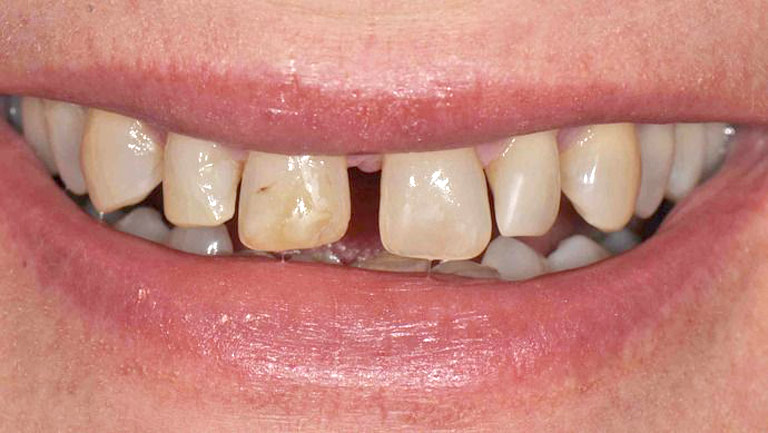 Closeup photo of man smiling with large gap in front teeth