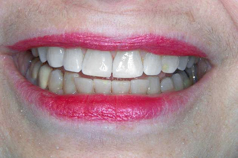 Closeup photo of woman smiling after smile makeover with gap removed