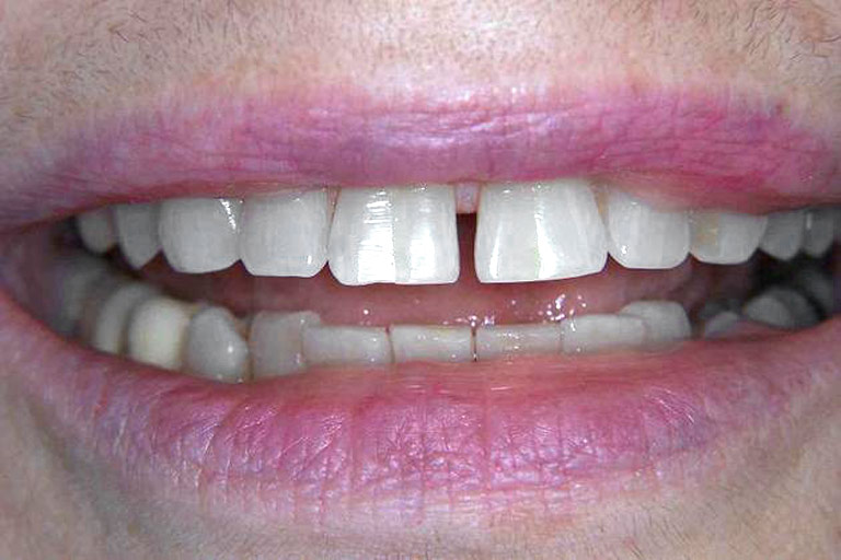 Closeup photo of woman smiling with large gap in front teeth
