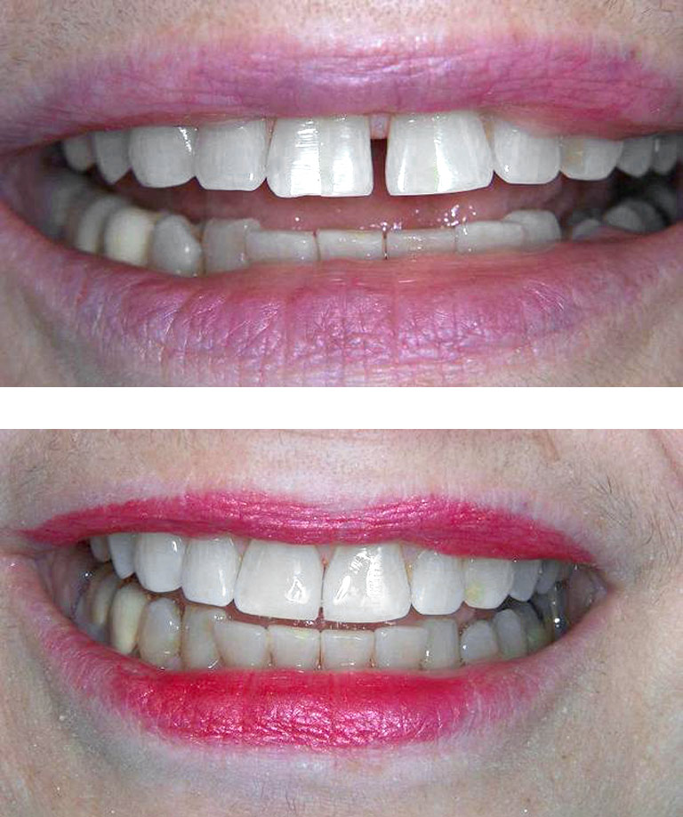 Closeup photos of woman smiling with large gap in front teeth showing before and after results by Dr. Weiss