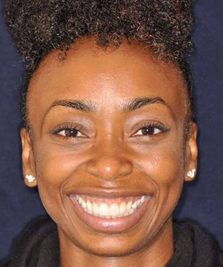 Headshot photo of young african-american woman smiling showing her smile makeover results from Dr. Weiss