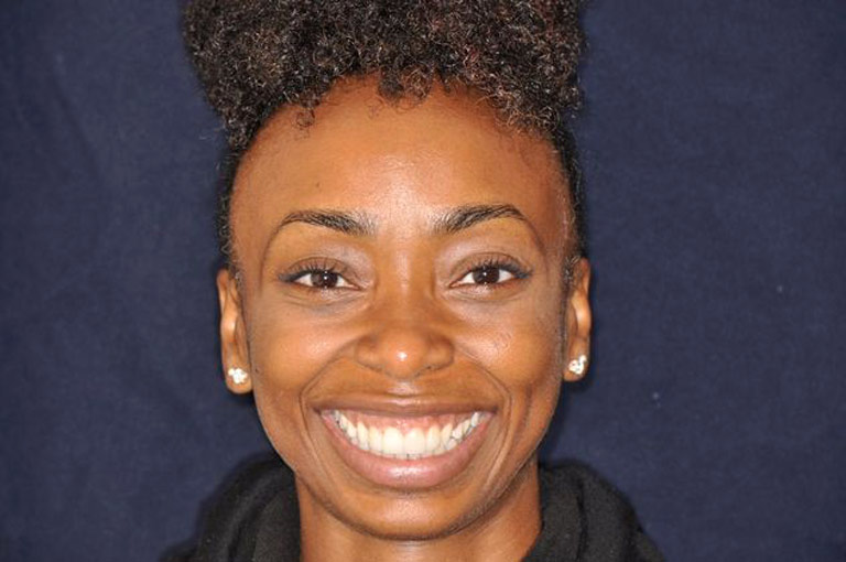 Headshot photo of young african-american woman smiling showing her teeth after smile makeover