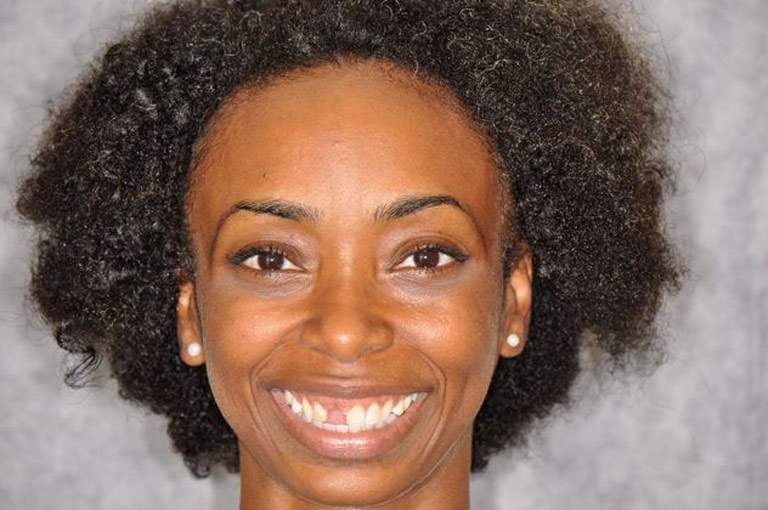 Headshot photo of young african-american woman smiling showing missing tooth before smile makeover