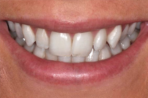 Closeup photo of Gabby smiling showing teeth dental bonding