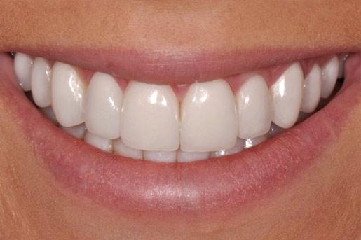Closeup photo of Gabby smiling after dental bonding