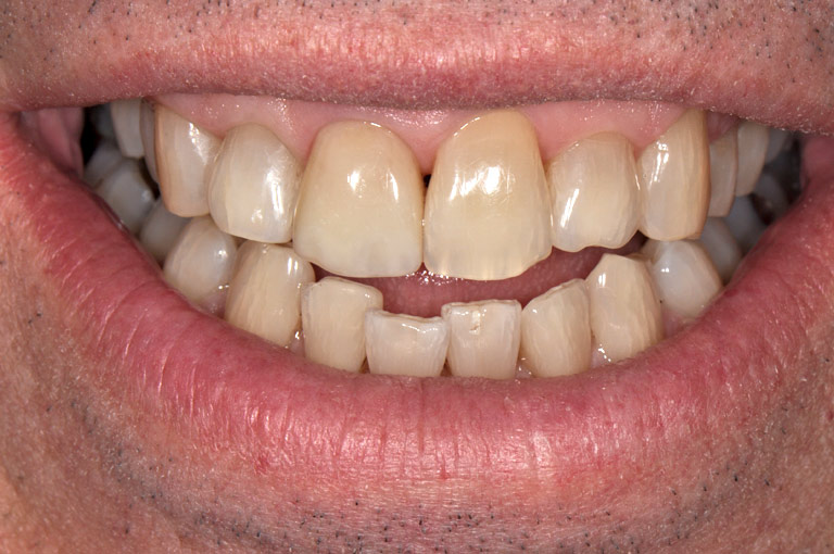 Close-up of six front teeth, showing the central incisor repaired.