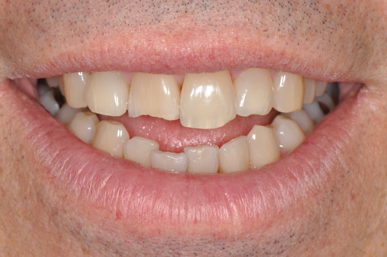 A close-up of six front teeth, showing one central incisor with a broken-off incisal edge.