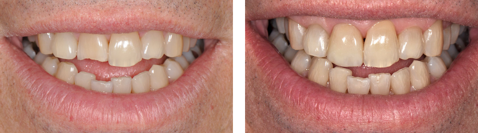 A close-up of six front teeth, showing one central incisor with a broken-off incisal edge repaired by Dr. Weiss