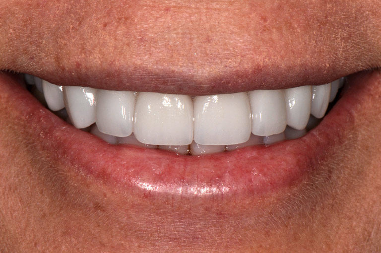 Closeup photo of female patient smiling showing teeth after smile makeover