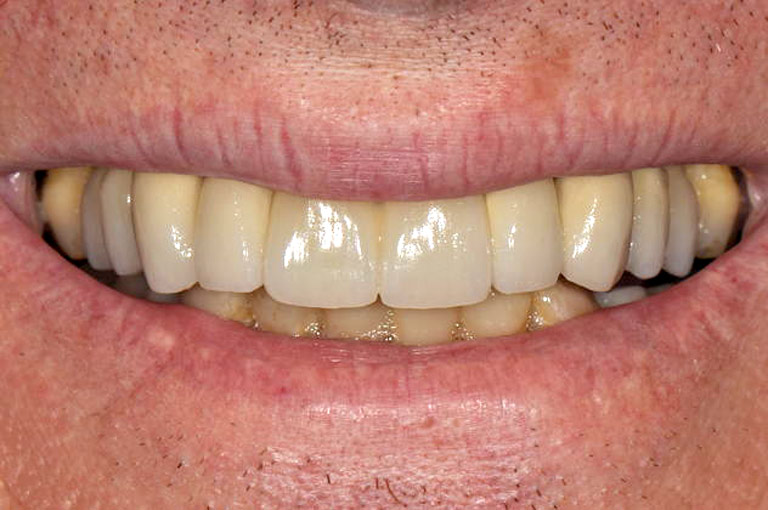 Closeup photo of man smiling showing his teeth after smile makeover