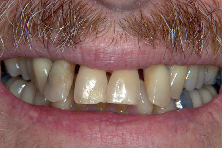 Closeup photo of man smiling showing his teeth before smile makeover