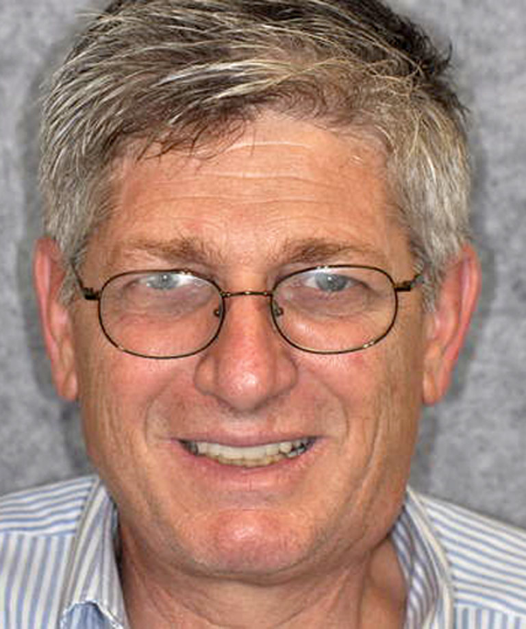 Headshot photo of gray-haired man with glasses smiling showing smile makeover results from Dr. Weiss