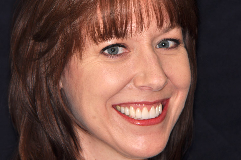 Closeup photo of woman smiling showing teeth after smile makeover