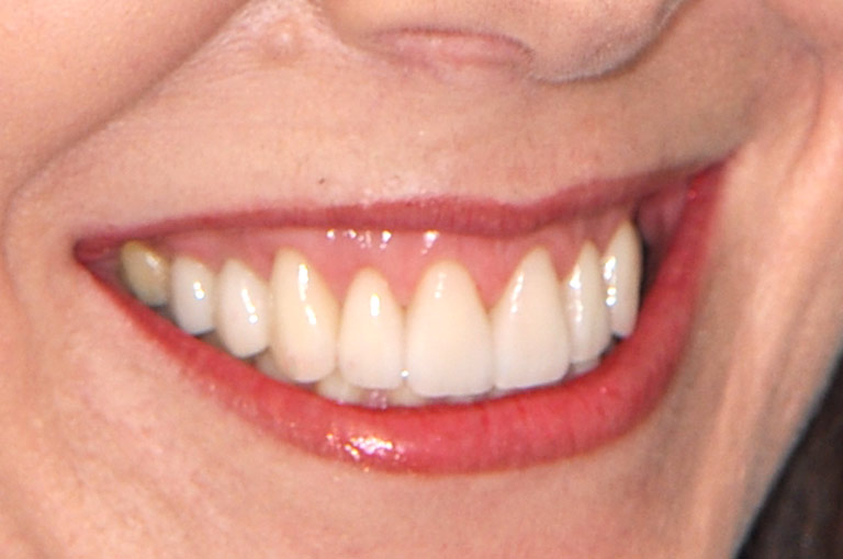 Closeup photo of woman smiling showing smile makeover results