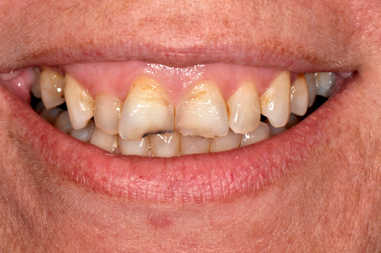 Closeup photo of woman smiling showing gaps before smile makeover