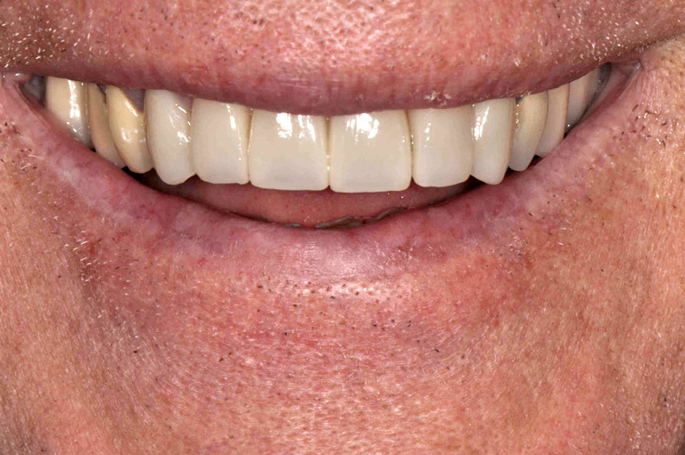 Closeup photo of older man smiling showing teeth after smile makeover