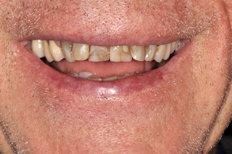 Closeup photo of older man smiling showing stained teeth before smile makeover