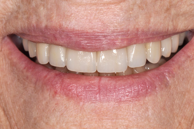 Closeup photo of older woman with glasses smiling showing teeth after smile makeover