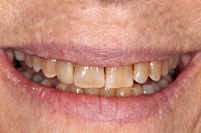 Closeup photo of older woman with glasses smiling showing teeth before smile makeover