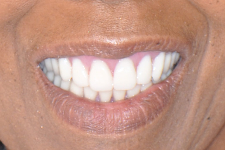 Closeup photo of african-american woman smiling after smile makeover
