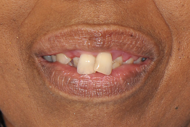Closeup photo of african-american woman smiling before smile makeover