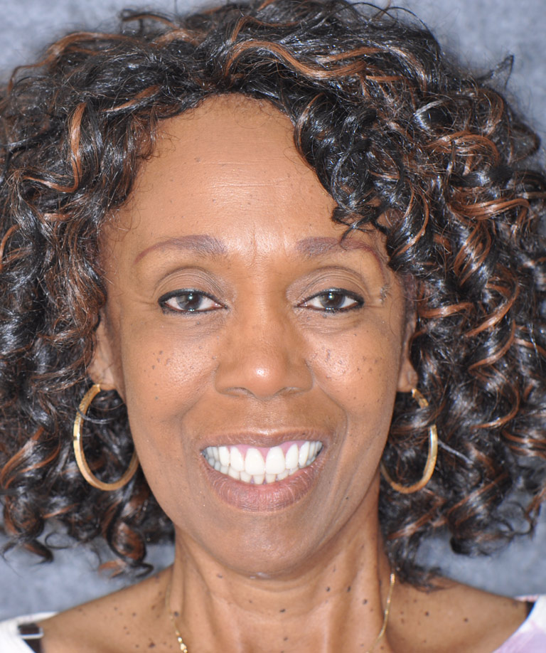Headshot photo of african-american woman smiling showing smile makeover results from Weiss