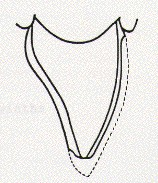 Diagram of a single tooth to illustrate the minimal amount of tooth preparation required for a porcelain veneer.