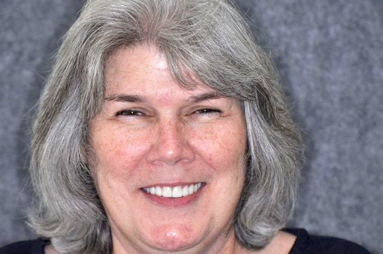 Headshot photo of woman with gray hair smiling showing smile makeover results