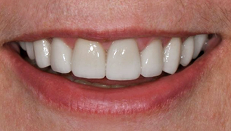 Closeup photo of woman with gray hair smiling showing teeth after smile makeover