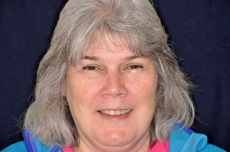 Headshot photo of woman with gray hair smiling before smile makeover