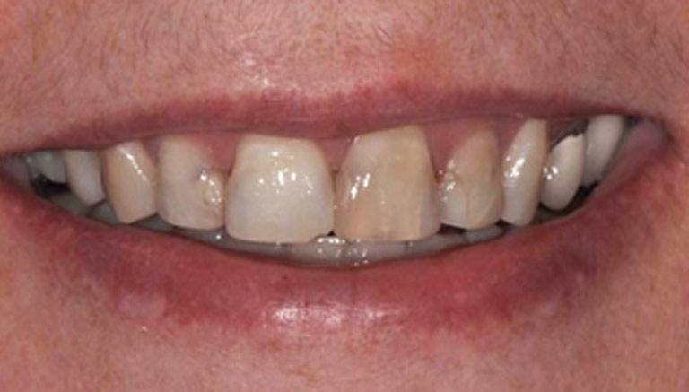 Closeup photo of woman with gray hair smiling showing teeth before smile makeover