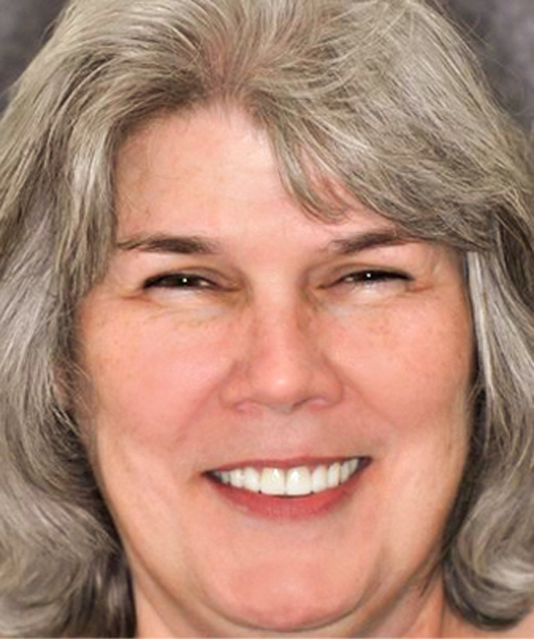 Headshot photo of woman with gray hair smiling showing smile makeover results from Weiss