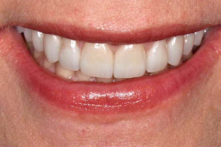Closeup photo of middle-aged blonde woman smiling after smile makeover