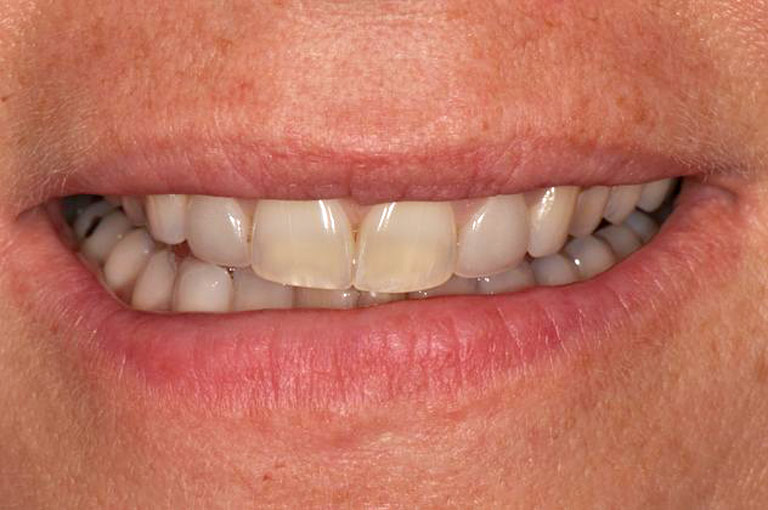 Closeup photo of middle-aged blonde woman smiling before smile makeover