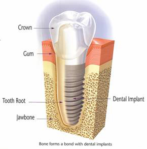 A diagram of a dental implant