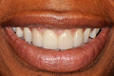 Dental implant after photo of a patient's tooth replacement for her right central incisor, which was provided by Philadelphia cosmetic dentist Dr. Michael Weiss.