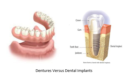 dentures versus dental implants