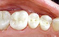 After mercury-free dentistry photo of three lower molar teeth with composite fillings that replaced amalgam fillings.