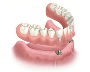Diagram of an affordable dental implant, which is a snap-on denture hovering above two dental implants in the lower anterior gums and bone.