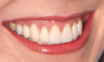 Porcelain crowns after photo of teeth that were revitalized by Philadelphia accredited cosmetic dentist Dr. Michael Weiss.